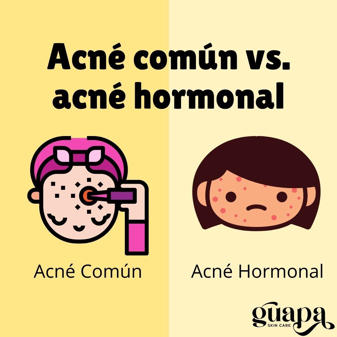 Acné Común Vs Acné hormonal